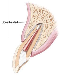 Knochenentzündung ist ausgeheilt