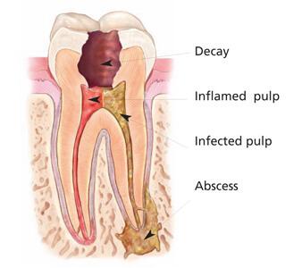 Endodontie - Periapikaler Abszess