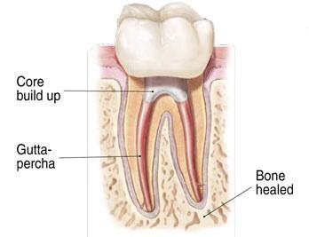 Wurzelbehandelter Zahn