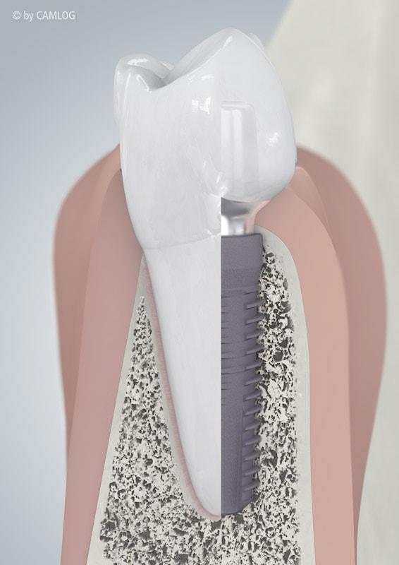 Bild vom Zahnimplantat Querschnitt