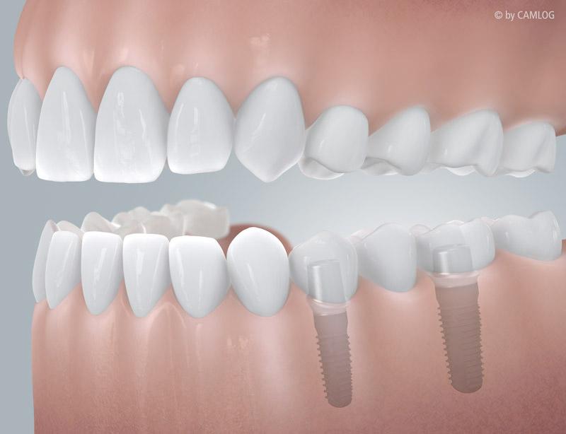 Teilbezahnung: Lösung mit einer implantatgetragenen Brücke [Camlog]