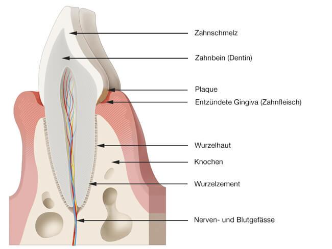 Parodontologie - Entzündetes Zahnfleisch