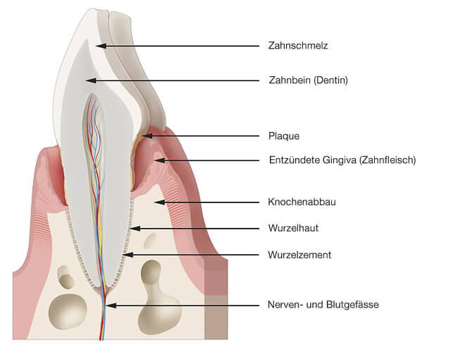 Entzündeter Zahnhalteapparat (Parodontitis)