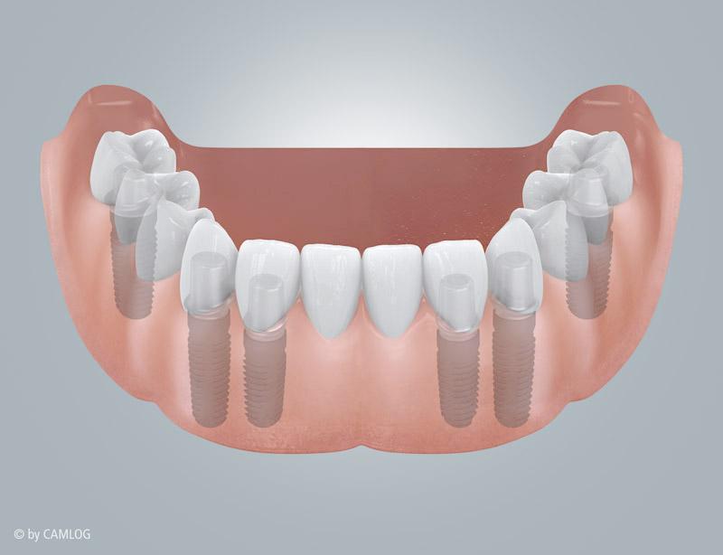 Zahnlosigkeit